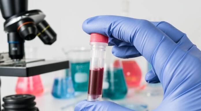 Ferrytyna - człowiek w laboratorium trzymający próbkę krwi.